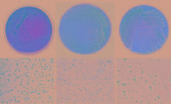 Left to right: salmonellae, campylobacter und listeria on nutrient agar (top) and in a microscope (bottom). (Copyright: Barbara Dörr / TUM)